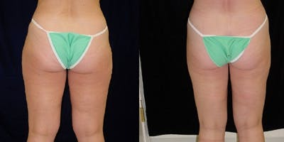 Liposuction Gallery - Patient 4567003 - Image 1