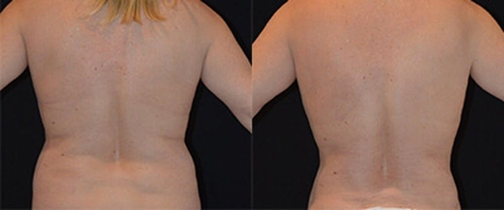 Liposuction Gallery - Patient 4567005 - Image 1