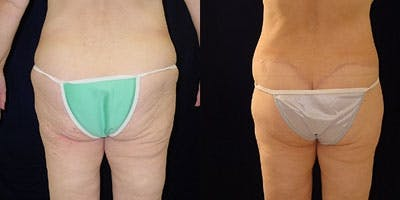 Buttock Lifts Gallery - Patient 4416058 - Image 1