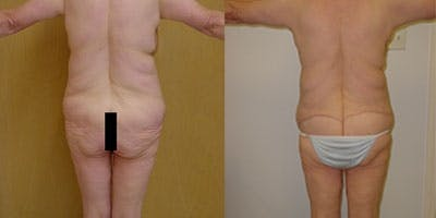 Buttock Lifts Gallery - Patient 4567026 - Image 1