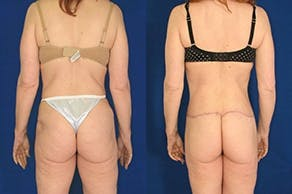 Buttock Lifts Gallery - Patient 4567027 - Image 1