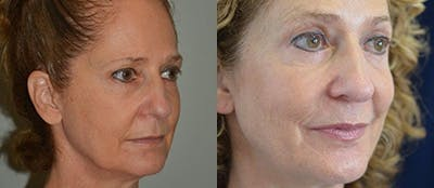 Brow Lifts Gallery - Patient 4567049 - Image 1
