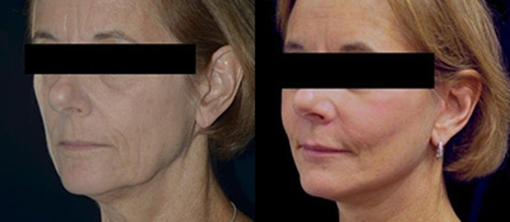 Brow Lifts Gallery - Patient 4567051 - Image 1