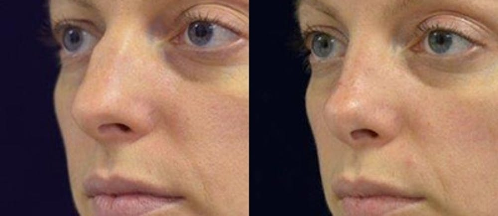 Rhinoplasty Gallery - Patient 4567056 - Image 1