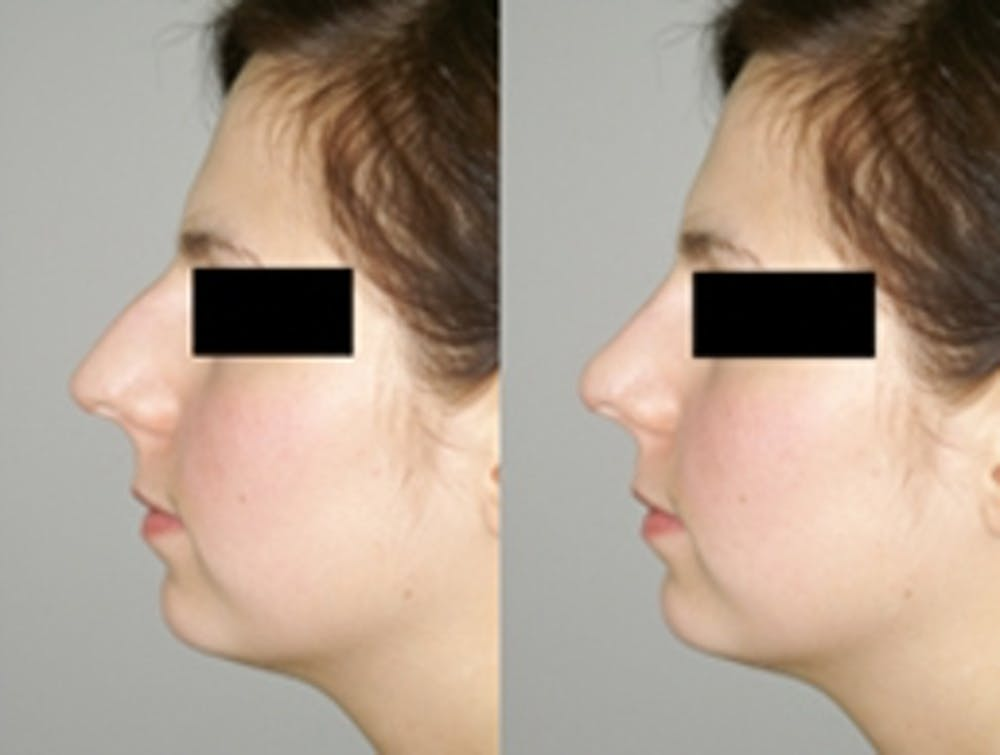 Rhinoplasty Gallery - Patient 4567057 - Image 1