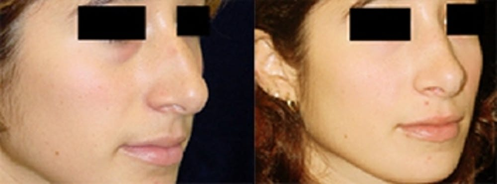 Rhinoplasty Gallery - Patient 4567060 - Image 1