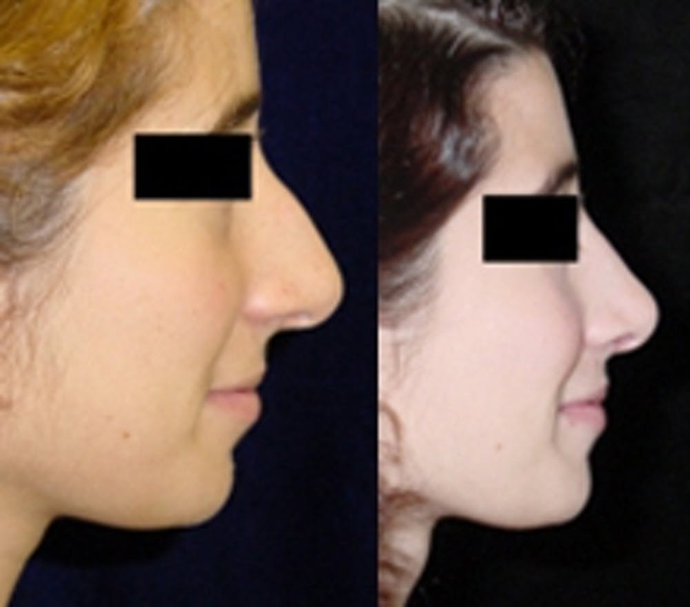 Rhinoplasty Gallery - Patient 4567061 - Image 1
