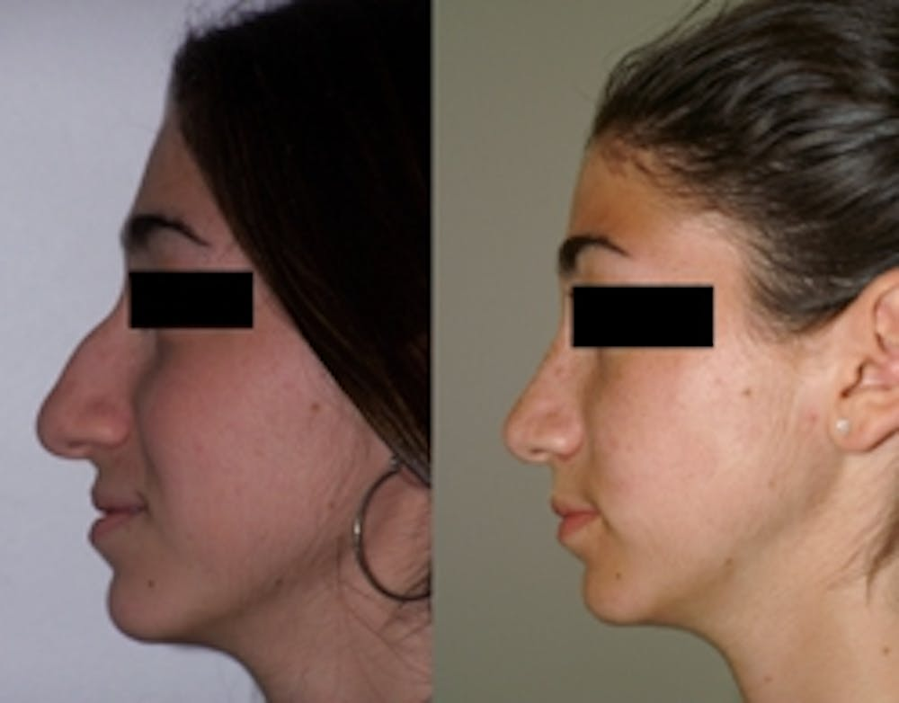 Rhinoplasty Gallery - Patient 4567062 - Image 1