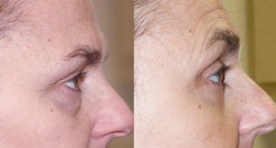Blepharoplasty Gallery - Patient 4567069 - Image 1