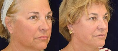 Blepharoplasty Gallery - Patient 4567071 - Image 1