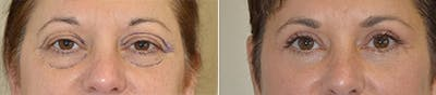 Blepharoplasty Gallery - Patient 4567072 - Image 1
