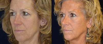 Blepharoplasty Gallery - Patient 4567074 - Image 1
