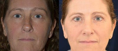 Blepharoplasty Gallery - Patient 4567076 - Image 1