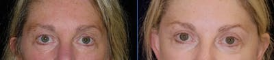 Blepharoplasty Gallery - Patient 4567077 - Image 1