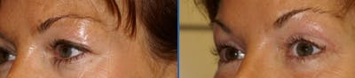 Blepharoplasty Gallery - Patient 4567081 - Image 1