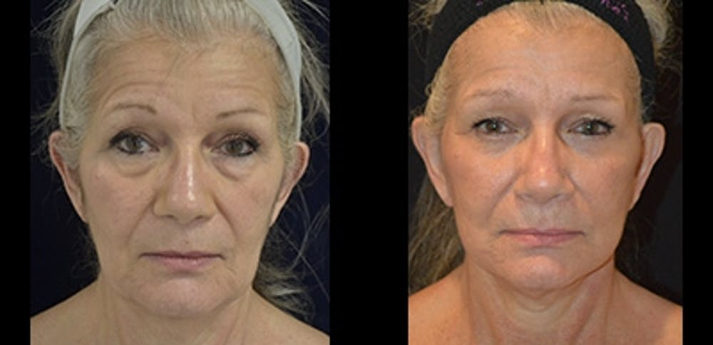 Face Lift Gallery - Patient 4567085 - Image 1