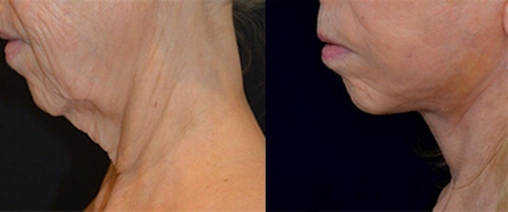 Face Lift Gallery - Patient 4567086 - Image 1