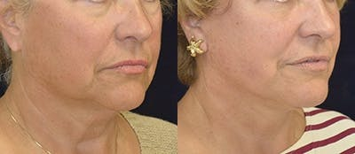 Face Lift Gallery - Patient 4567087 - Image 1