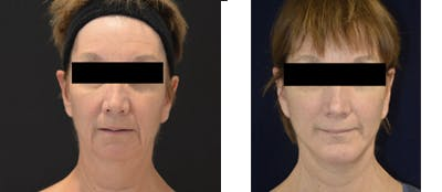 Face Lift Gallery - Patient 4567088 - Image 1