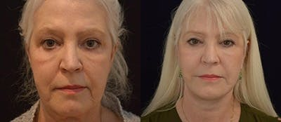 Face Lift Gallery - Patient 4567090 - Image 1