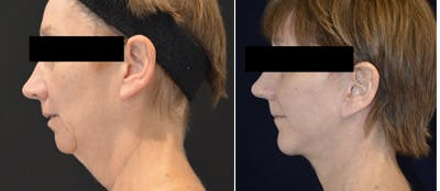 Face Lift Gallery - Patient 4567091 - Image 1
