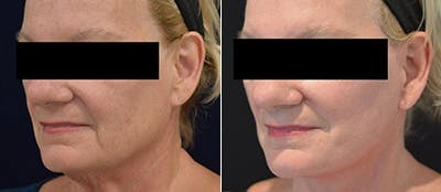 Face Lift Gallery - Patient 4567092 - Image 1