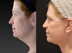 Face Lift Gallery - Patient 4567093 - Image 1