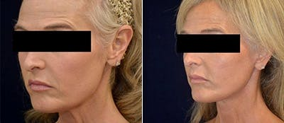 Face Lift Gallery - Patient 4567094 - Image 1