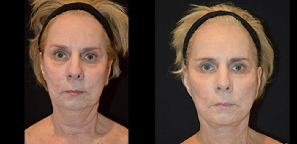 Face Lift Gallery - Patient 4567096 - Image 1
