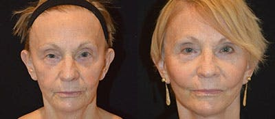 Face Lift Gallery - Patient 4567097 - Image 1