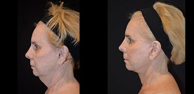Face Lift Gallery - Patient 4567098 - Image 1