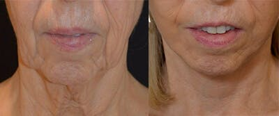 Face Lift Gallery - Patient 4567099 - Image 1