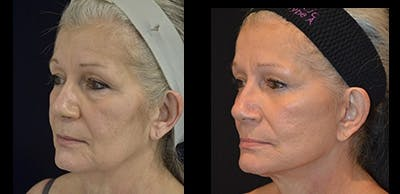 Face Lift Gallery - Patient 4567100 - Image 1