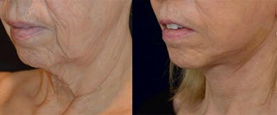 Face Lift Gallery - Patient 4567101 - Image 1