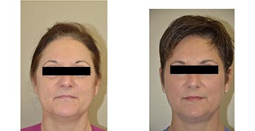 Face Lift and Sculptra Treatments Gallery - Patient 4567103 - Image 1