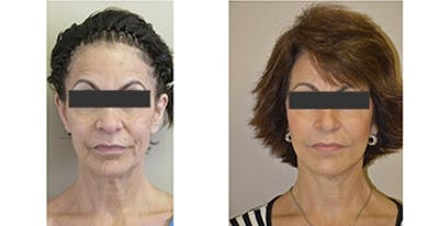 Face Lift and Sculptra Treatments Gallery - Patient 4567104 - Image 1
