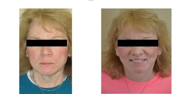 Face Lift and Sculptra Treatments Gallery - Patient 4567105 - Image 1