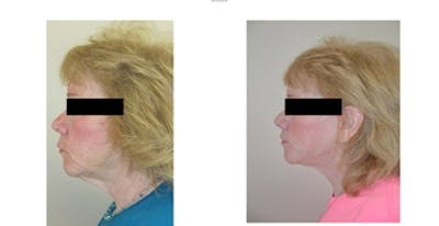 Face Lift and Sculptra Treatments Gallery - Patient 4567106 - Image 1