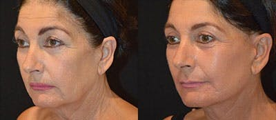 Total Facial Rejuvenation Gallery - Patient 4567112 - Image 1
