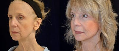 Total Facial Rejuvenation Gallery - Patient 4567113 - Image 1