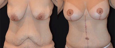Mommy Makeover Gallery - Patient 4567124 - Image 1