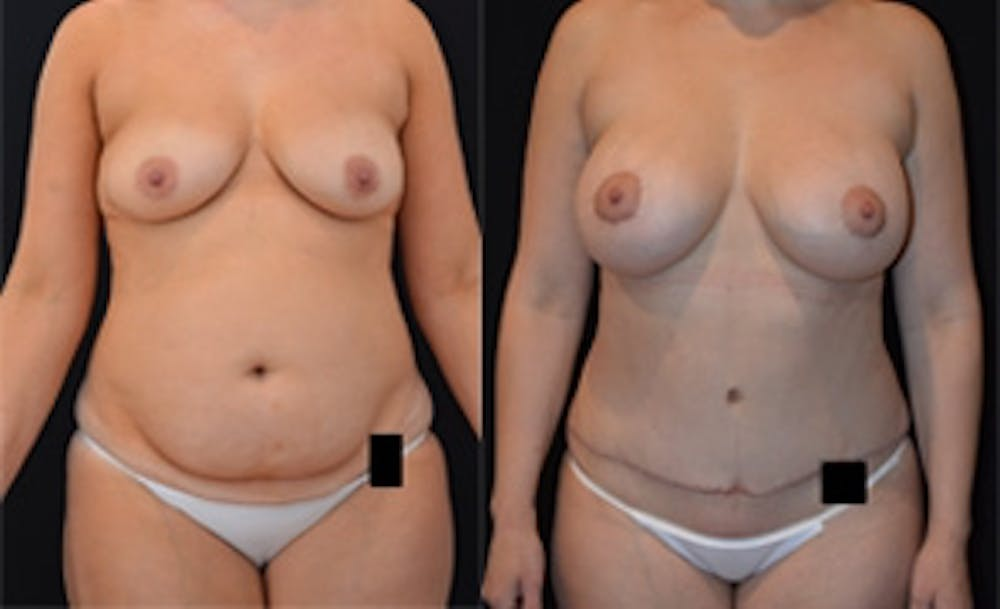 Mommy Makeover Gallery - Patient 4567126 - Image 1