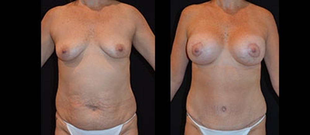 Mommy Makeover Gallery - Patient 4567128 - Image 1