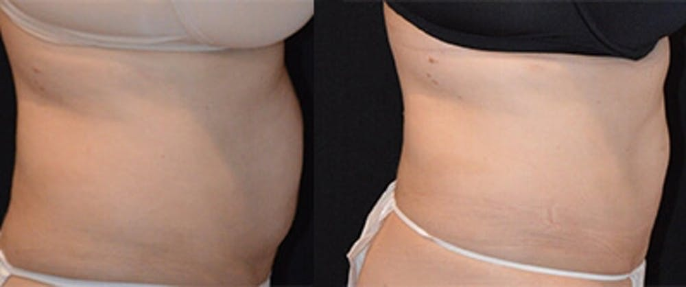 Coolsculpting Gallery - Patient 4567131 - Image 1