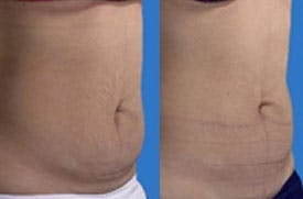Coolsculpting Gallery - Patient 4567133 - Image 1