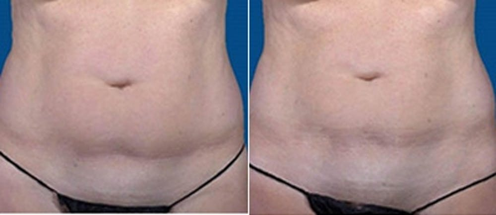 Coolsculpting Gallery - Patient 4567134 - Image 1