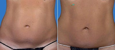 Coolsculpting Gallery - Patient 4567135 - Image 1