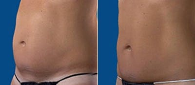 Coolsculpting Gallery - Patient 4567136 - Image 1
