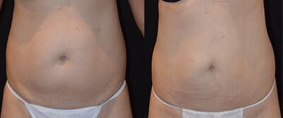 Coolsculpting Gallery - Patient 4567137 - Image 1