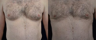 Gynecomastia Reduction Gallery - Patient 4567176 - Image 1